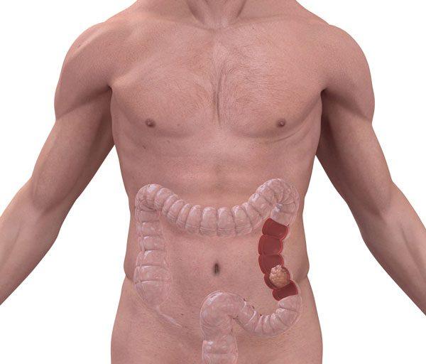 Colon Cancer - 5 detalii importante pentru a preveni cancerul de colon