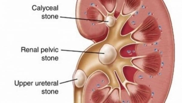 scapa de pietre la rinichi cu aceasta planta jpg