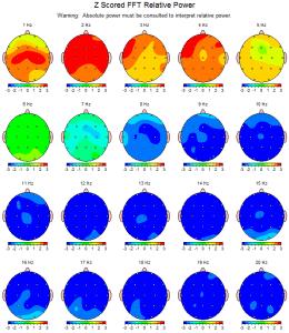 Escáner cerebral de Michelle de febrero de 2013. Las áreas azules indican una disminución del nivel de actividad cognitiva.