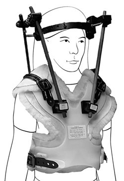 The halo brace, a device that could've been used during the Spanish Inquisition.