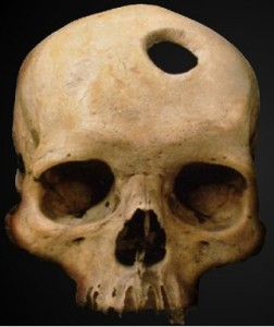 trepanned-skull-252x300