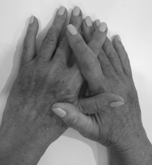 Photo of hands palm down