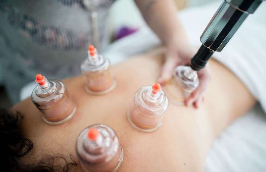 cupping procedure on back; healthcare in Malaysia