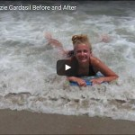 Kenzie Before After Gardasil. The Story of Kenzie