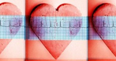 Artwork showing repeated images of hearts with electrocardiogram traces. Credit: Neil Leslie, Wellcome Images