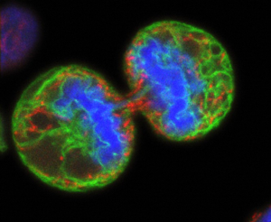 Human melanoma cell undergoing cell division. Credit: Paul J.Smith &Rachel Errington, Wellcome Images.