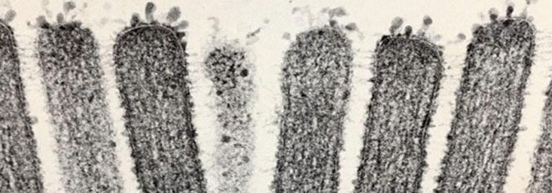 Human intestinal microvilli. Credit: Wellcome Library, London