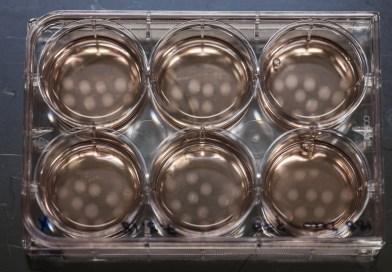 The weird and wonderful world of organoids