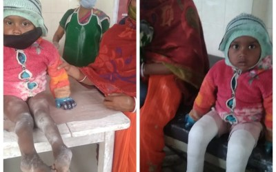 Prosthetic Limbs Donated and Polio Corrective Surgeries Conducted