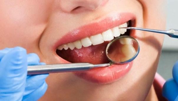 Da Secretaría de Salud más de 7 Mil Consultas Odontológicas
