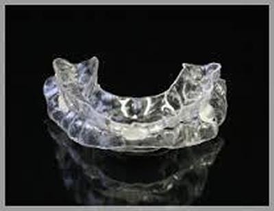 歯科的な治療法 スリープスプリント
