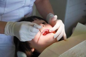 口の中の診査