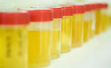 Албумин в урината