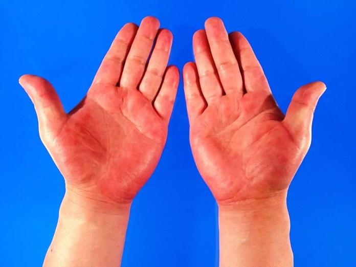 Червени длани - Тялото дава сигнали за болестите
