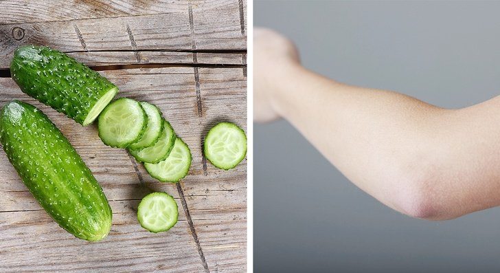 10 Trucos Naturales Para Eliminar Las Rodillas Y Los Codos Oscuros 2