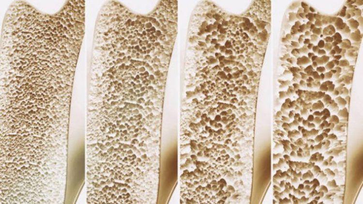 7 Súper Alimentos Para Prevenir La Osteoporosis 1