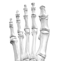 Are Neuromas and Neuropathy the same?