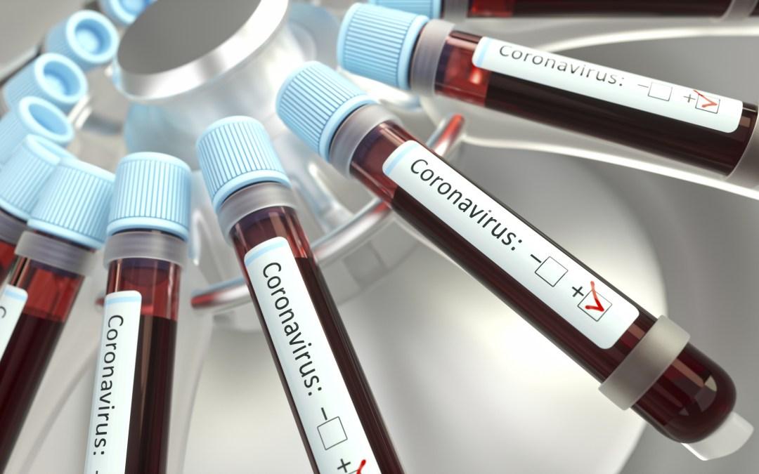 Casos do novo coronavírus no Brasil ultrapassam 510 mil