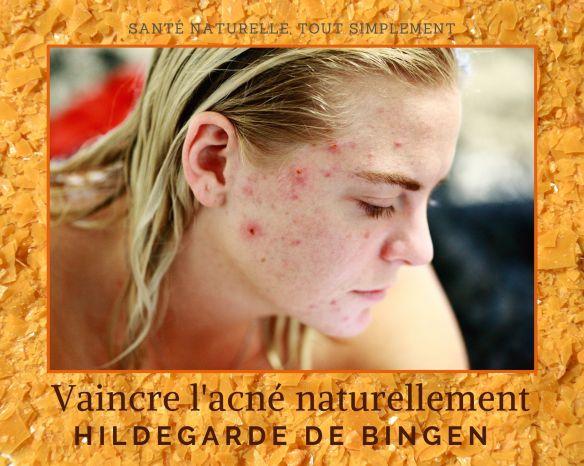 4 CONSEILS NATURELS CONTRE L'ACNE AVEC HILDEGARDE DE BINGEN