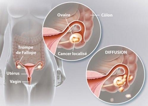 Le cancer de l'ovaire: symptômes, facteurs de risque, traitement