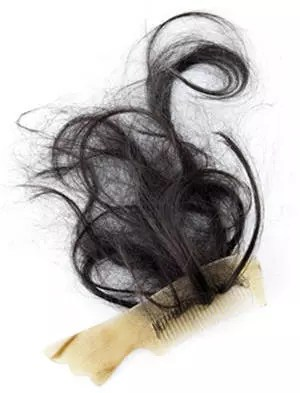 une chute de cheveux importante et soudaine doit vous amener à consulter.
