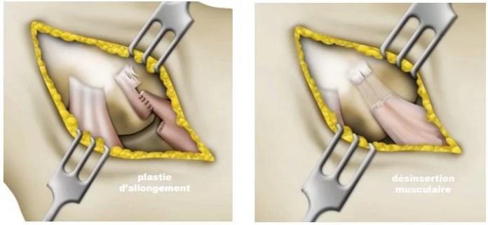 Chirurgie de l'épicondylite
