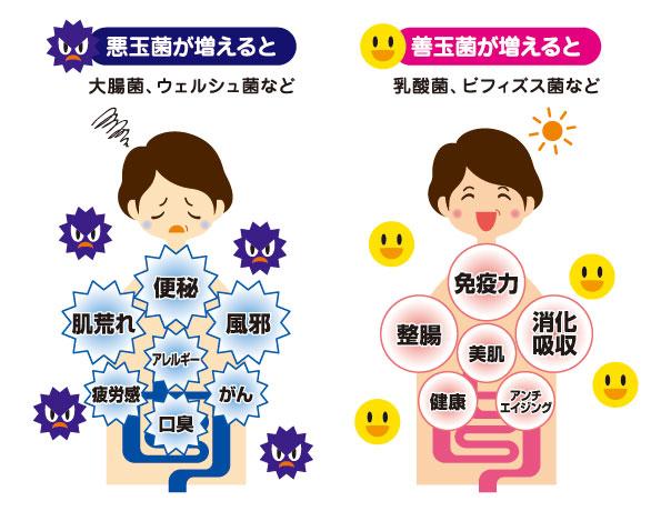 乳酸菌とビフィズス菌の違いやそれぞれの働きは?