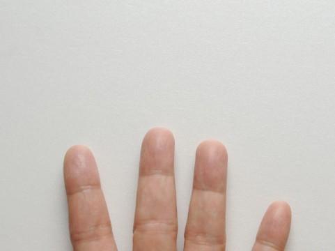 しもやけに効く薬おすすめ8選!ステロイドは危険なの?