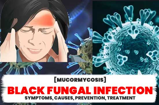 Mucormycosis-Black-fungal-infection