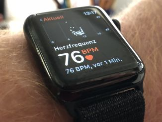 Apple Watch as a lifesaver: The smartwatch may help. Photo: Sascha Tegtmeyer