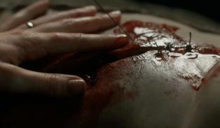 close up suturing rupert