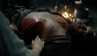 rupert's wound