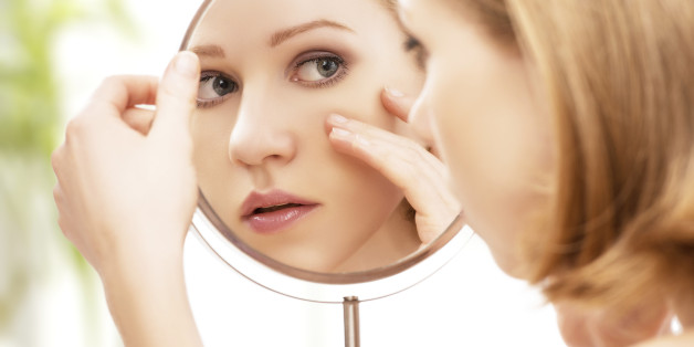 Acne scars woman face in mirror worried
