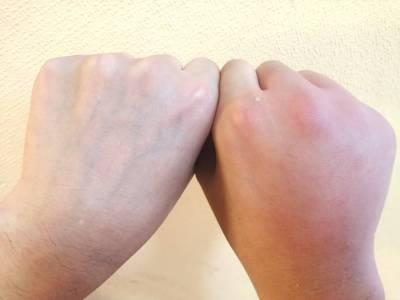 右手甲を蜂に刺された