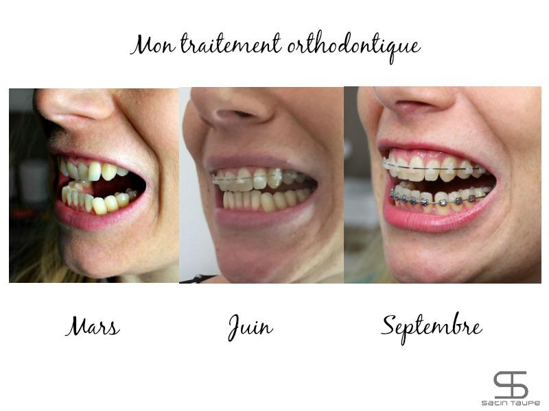 appareil-dentaire-avant-apres