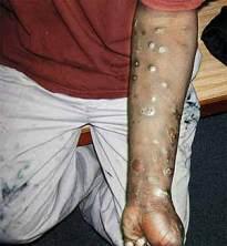 heroin-addict