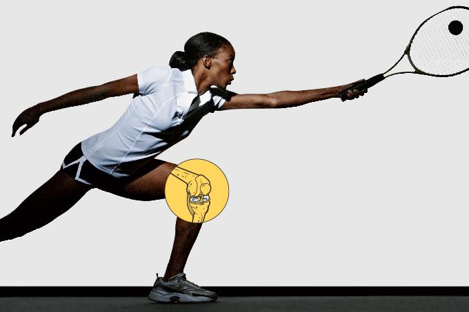 Exercícios vigorosos não causam artrose no joelho