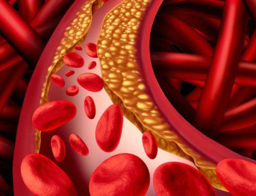 Colesterol durante a gravidez pode influenciar RCV dos filhos, sugere estudo