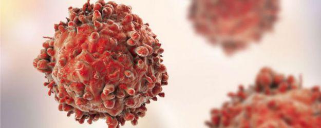 Linfoma de Hodgkin: Infarmed aprova financiamento de pembrolizumab em monoterapia