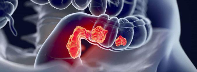 Colonoscopia aos 30 anos para doentes com Síndrome do cancro do cólon hereditário