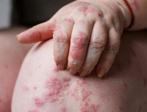 Dermatite Atópica Grave. Dupilumab aprovado pela CE para crianças entre os 6 e os 11 anos