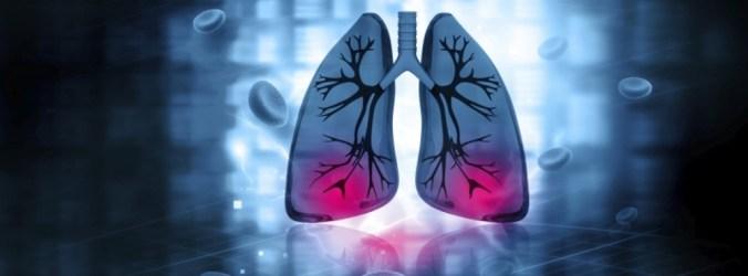 Clonagem de células estaminais dos pulmões é mais um passo no combate à DPOC
