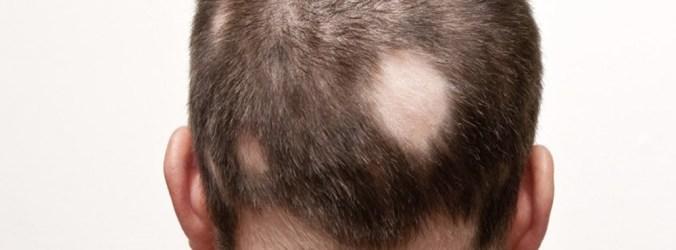 Doentes com Alopecia Areata correm maior risco de sofrer enfarte do miocárdio
