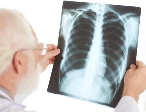 Atraso no diagnóstico da DPI aumenta o risco de morte em pacientes com artrite reumatoide