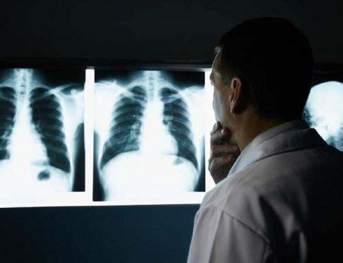 70% dos portugueses disponíveis para fazer rastreio ao cancro do pulmão