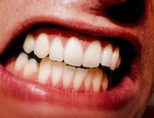 Bruxismo: as causas do hábito de ranger os dentes