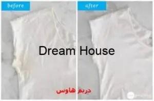إزالة البقع الصفراء من الملابس البيضاء