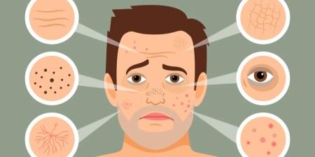 Adult acne in men
