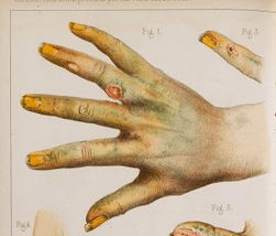 arsenical issues hands