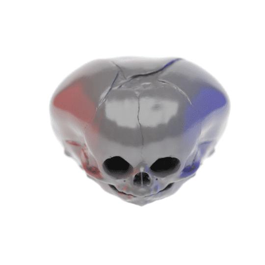 Conjoined Fetal Human Skull Model